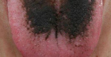 """Un hombre sufre en Pinoso quemaduras de primer grado en la lengua al pedirse un agua """"del tiempo"""""""
