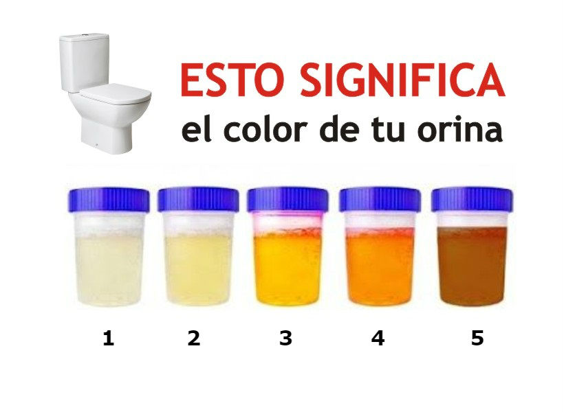 significado color orina